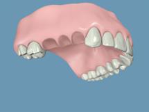 implantes-en-quito